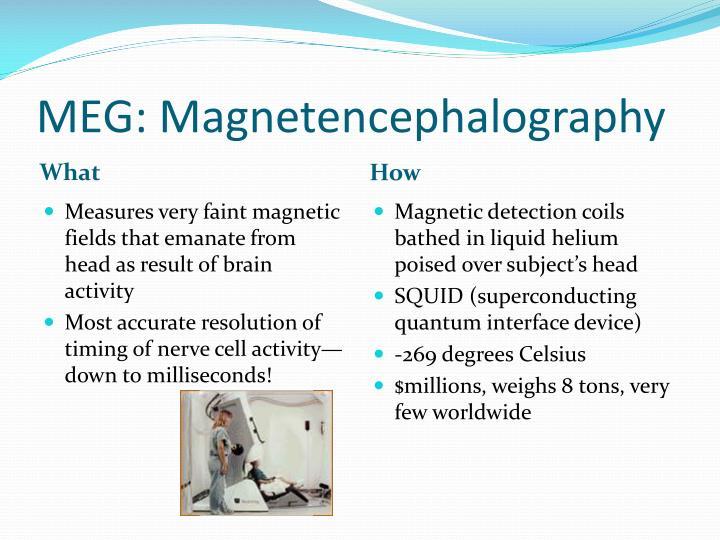 MEG: Magnetencephalography