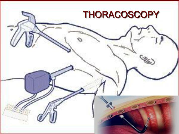 THORACOSCOPY