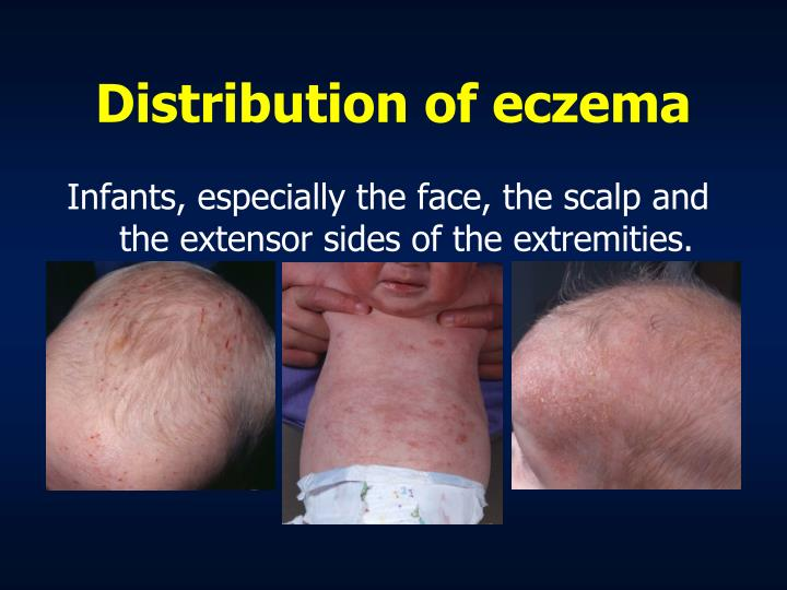 Distribution of eczema