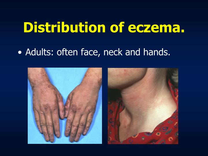 Distribution of eczema.