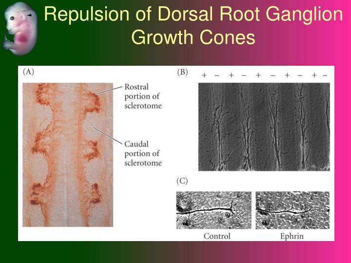 Repulsion of Dorsal Root Ganglion Growth Cones