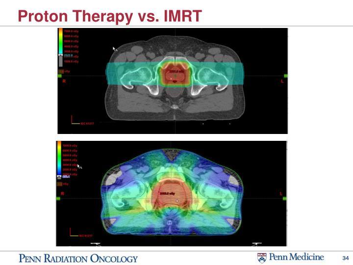 Proton Therapy vs. IMRT