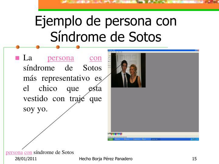 Ejemplo de persona con Síndrome de Sotos