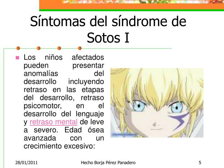 Síntomas del síndrome de Sotos I