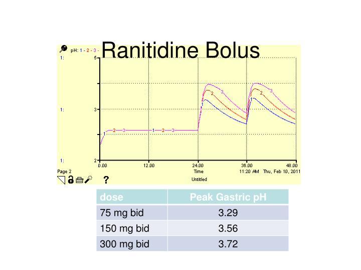 Ranitidine Bolus