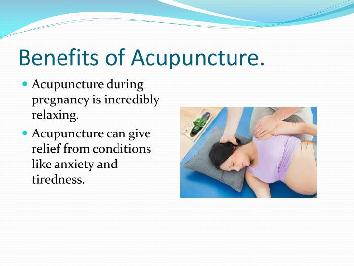 Benefits of Acupuncture.