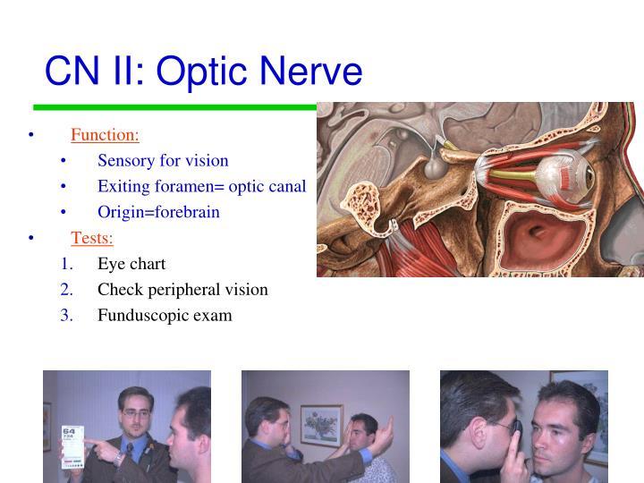 CN II: Optic Nerve