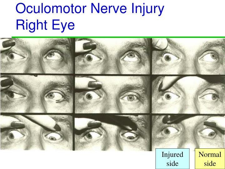 Oculomotor Nerve Injury