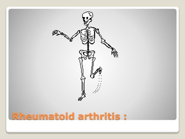 Rheumatoid arthritis :