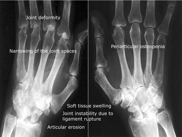 Joint deformity