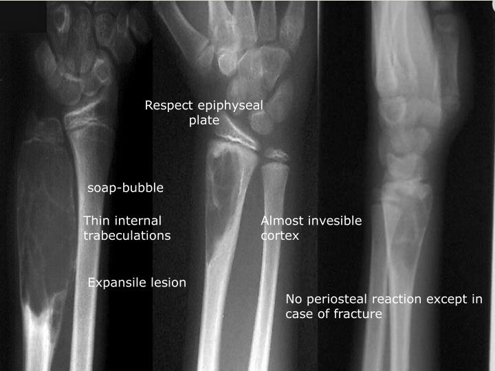 Respect epiphyseal plate
