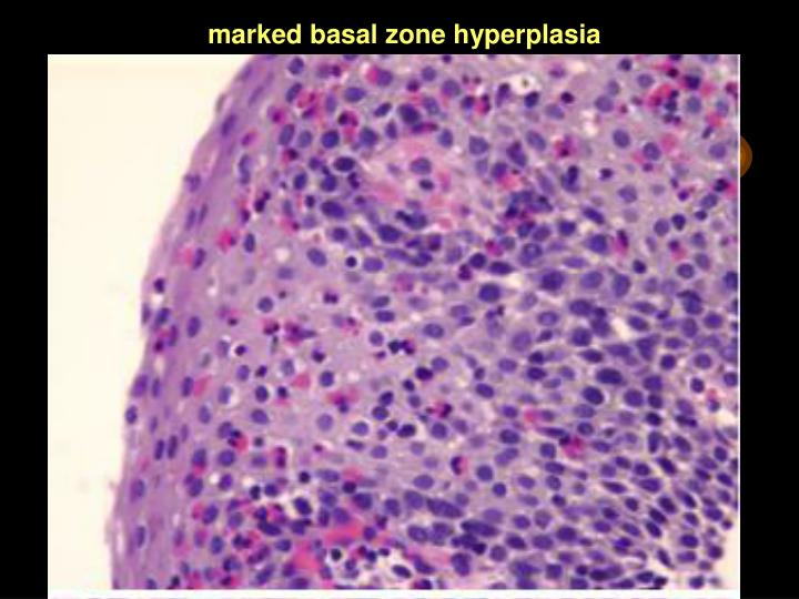 marked basal zone hyperplasia
