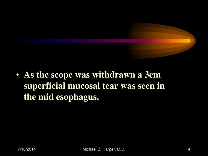 As the scope was withdrawn a 3cm superficial mucosal tear was seen in the mid esophagus.