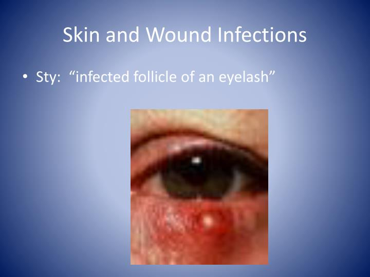 Skin and Wound Infections