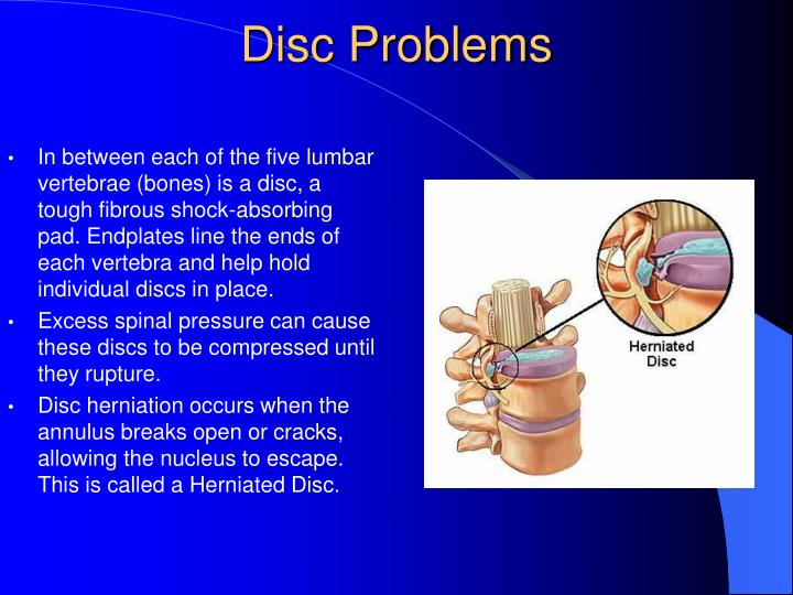Disc Problems