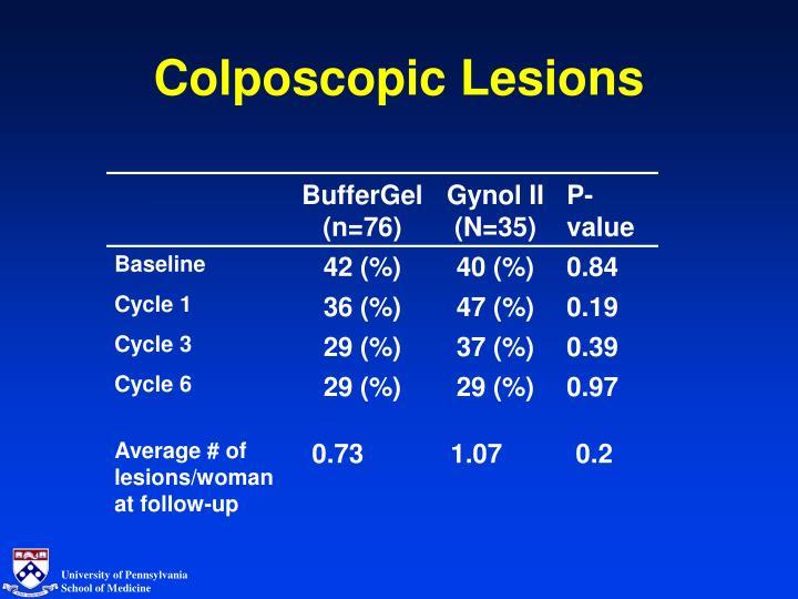 Colposcopic Lesions
