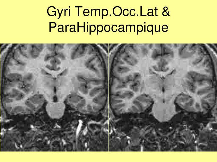 Gyri Temp.Occ.Lat & ParaHippocampique