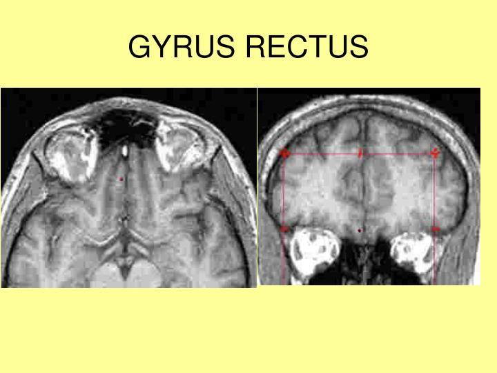 GYRUS RECTUS