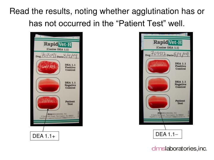 "Read the results, noting whether agglutination has or has not occurred in the ""Patient Test"" well."