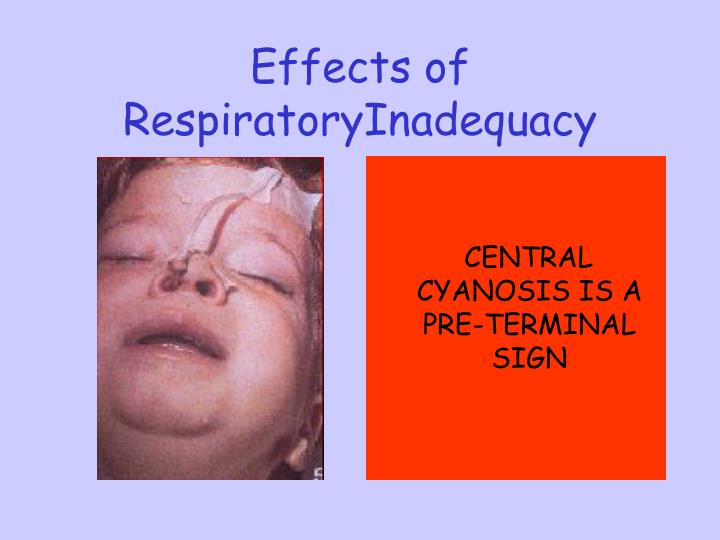 Effects of RespiratoryInadequacy