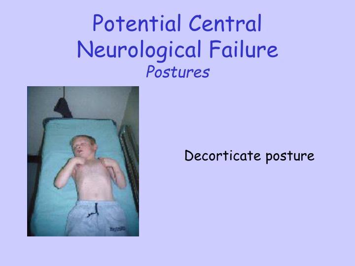 Potential Central Neurological Failure