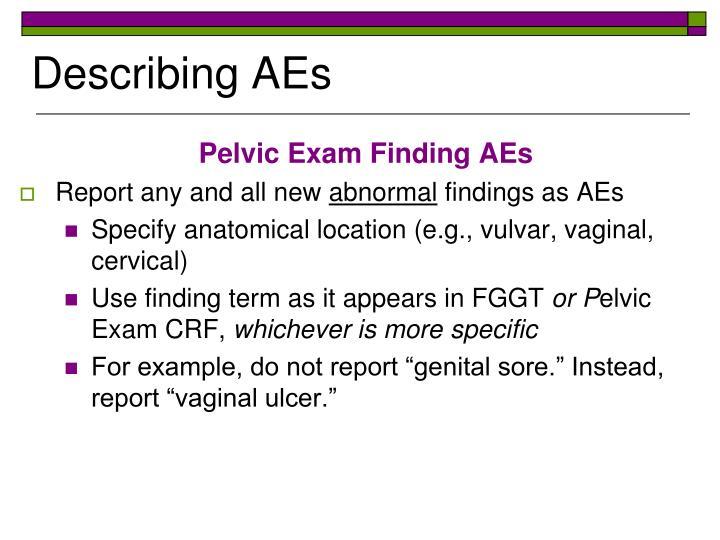 Describing AEs