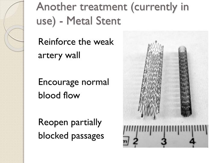 Another treatment (currently in use) - Metal Stent