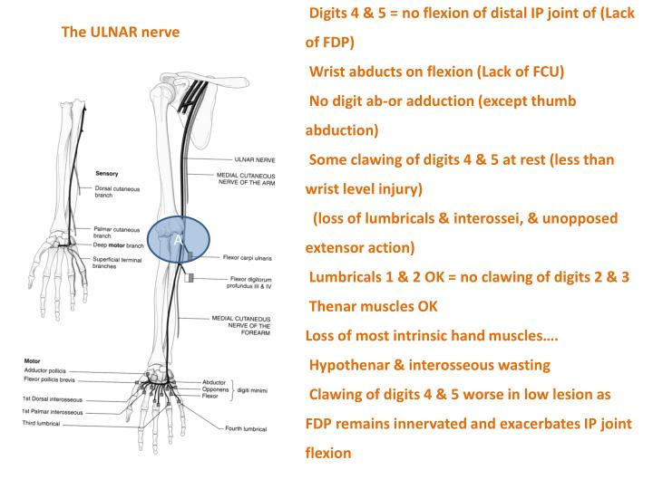 Digits 4 & 5 = no flexion of distal IP joint of (Lack of FDP)