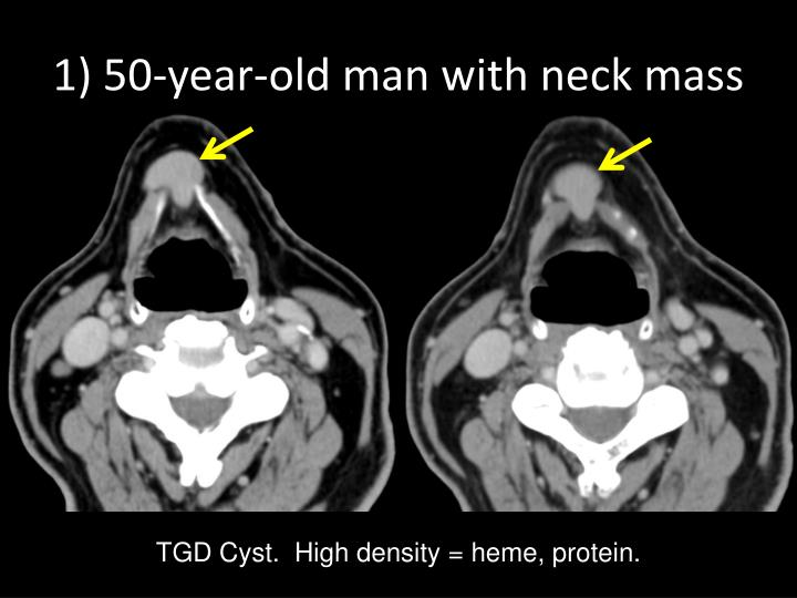 1) 50-year-old man with neck mass