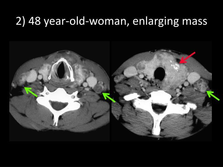 2) 48 year-old-woman, enlarging mass