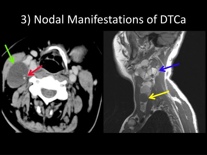 3) Nodal Manifestations of DTCa