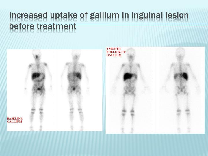 Increased uptake of gallium in inguinal lesion before treatment