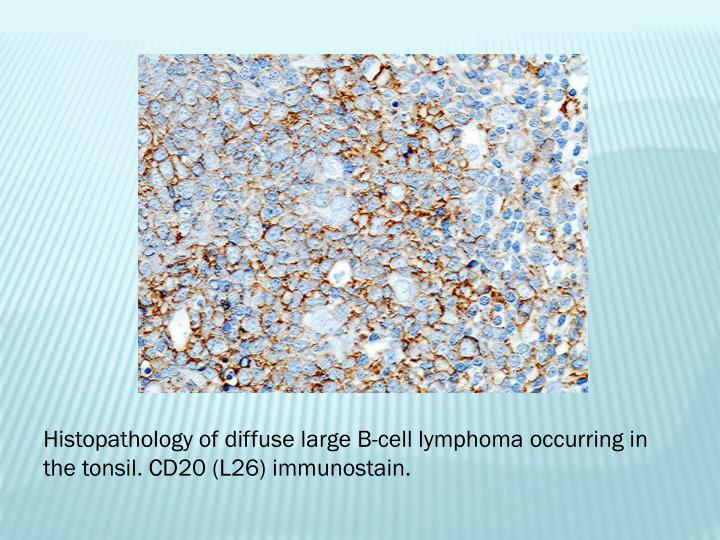 Histopathology of diffuse large B-cell lymphoma occurring in the tonsil. CD20 (L26)