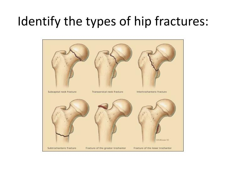 Identify the types of hip fractures:
