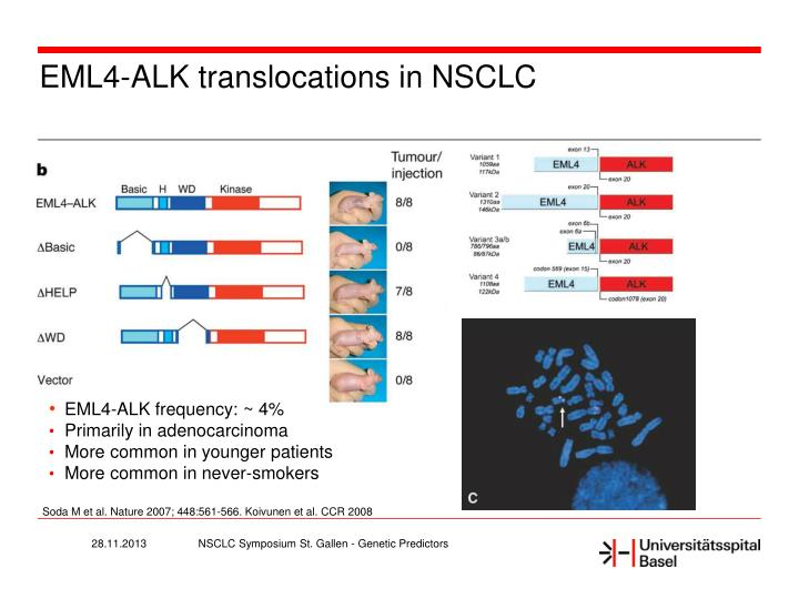 EML4-ALK translocations in NSCLC