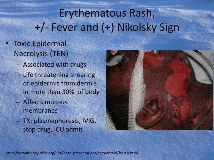 Erythematous Rash,