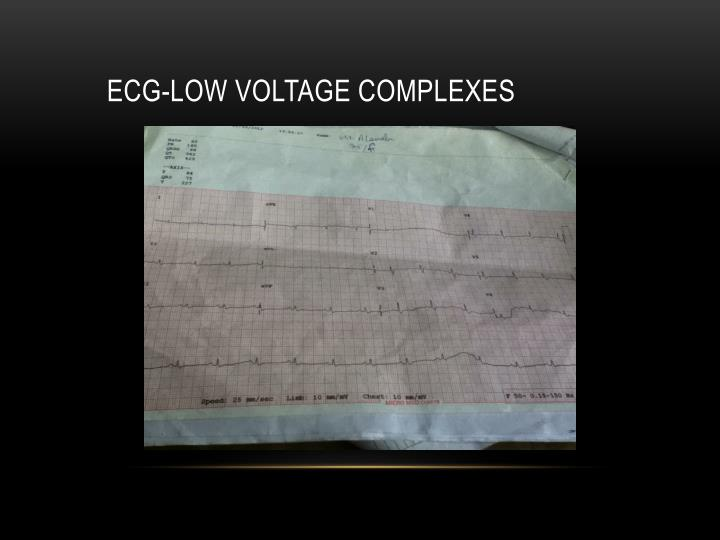 ECG-low voltage complexes