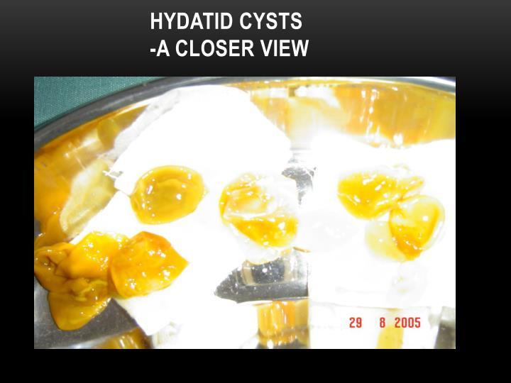 HYDATID CYSTS
