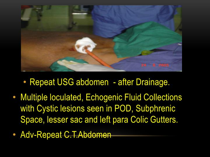 Repeat USG abdomen  - after Drainage.