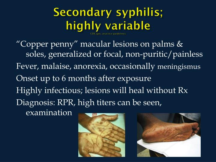 Secondary syphilis;              highly variable