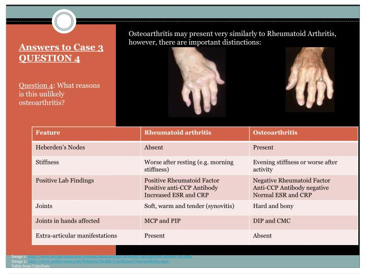 Osteoarthritis may present very similarly to Rheumatoid Arthritis, however, there are important distinctions: