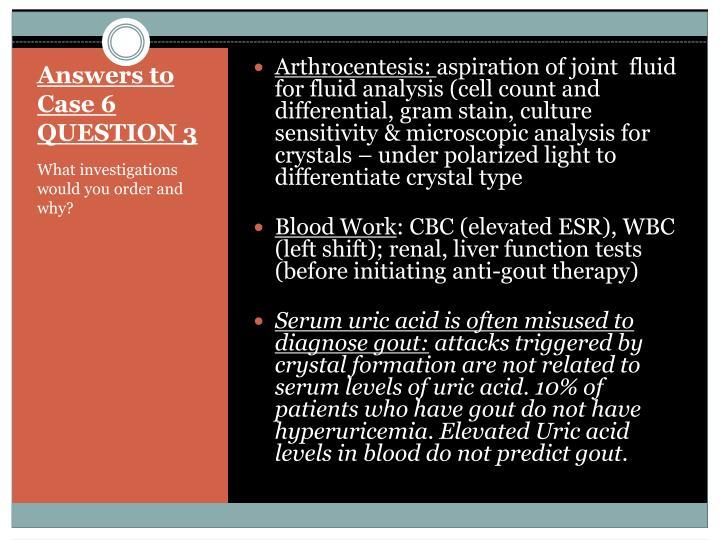 Arthrocentesis