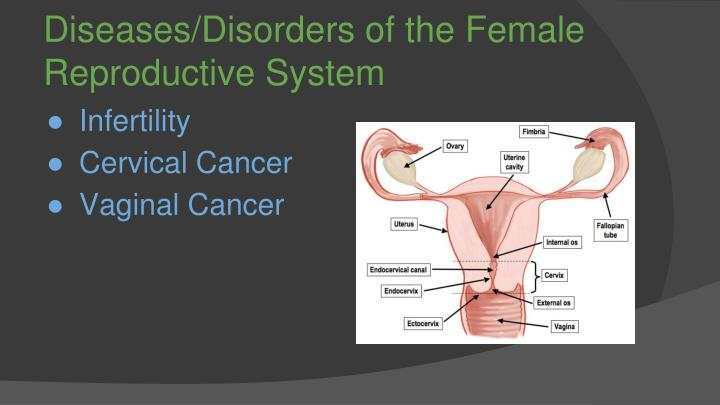 Diseases/Disorders of the Female Reproductive System