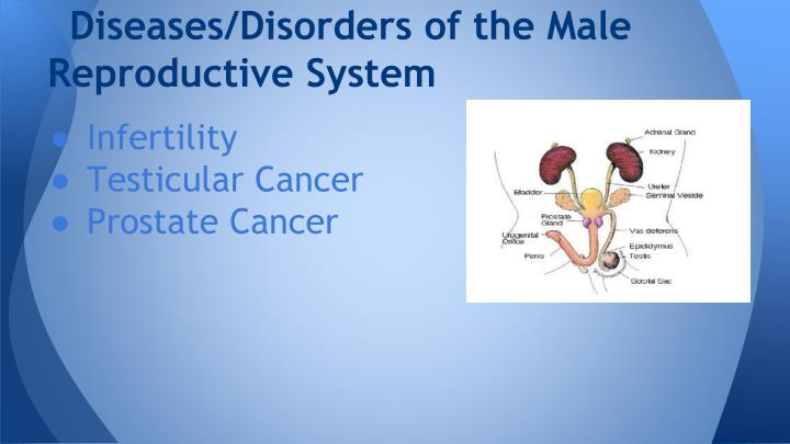 Diseases/Disorders of the Male Reproductive System