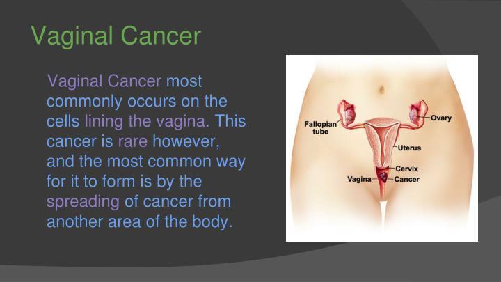 Vaginal Cancer