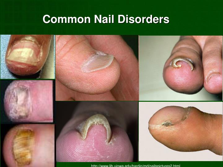 Common Nail Disorders