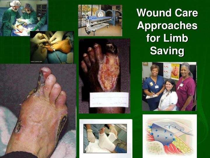 Wound Care Approaches for Limb Saving