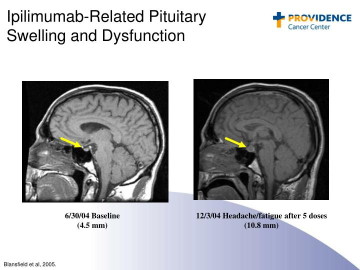Ipilimumab-Related Pituitary Swelling and Dysfunction