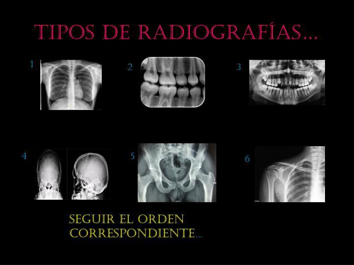 Tipos de radiografías…