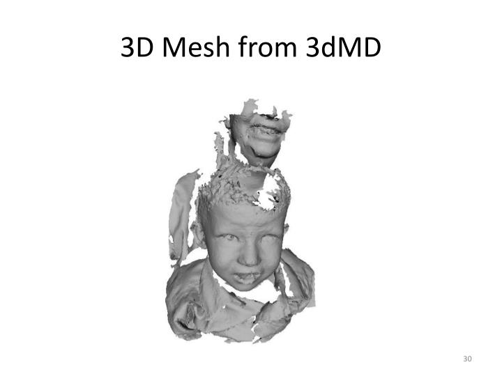 3D Mesh from 3dMD